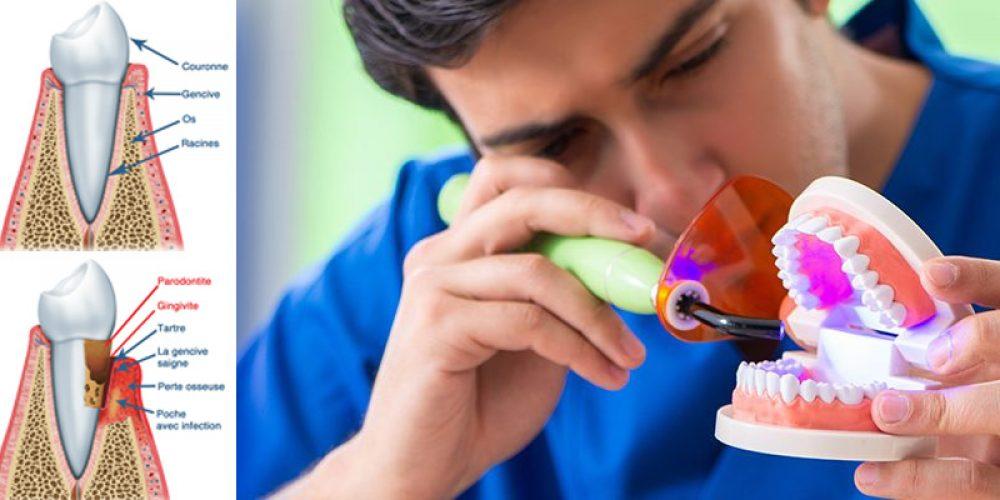 Problèmes de parodonte : trouver un spécialiste sur Paris