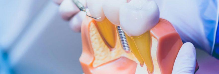Prothèses dentaires et solutions d'implants : contacter un spécialiste en ligne
